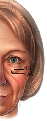 眼袋和泪沟的区别