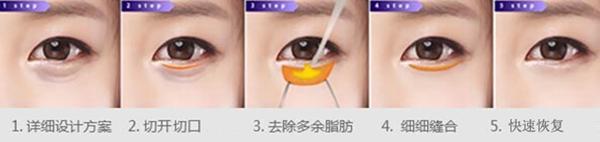 晋城凤凰外切口祛眼袋