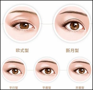 成都天之美双眼皮手术