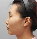 西安华仁定制网红鼻 术后鼻型翘挺美