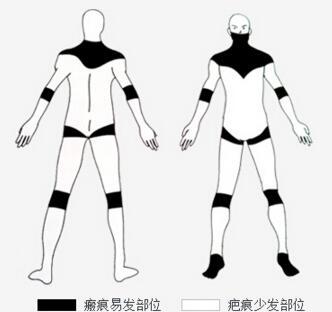 长沙湘雅医院整形科提醒:疤痕易发的部位