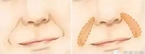 面部法令纹