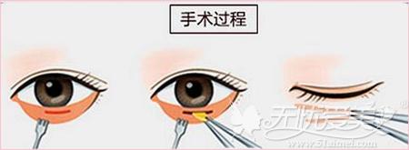沈阳百嘉丽去眼袋手术