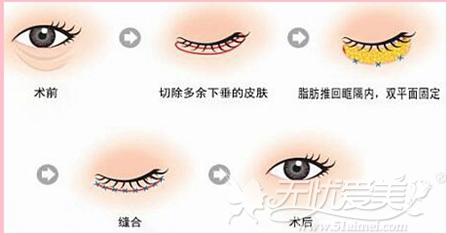 沈阳杏林整形精细法去眼袋