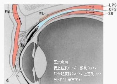 上睑下垂联合筋膜鞘术(CFS+LM)的优点