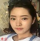 美眉们在西安华仁做双眼皮手术的美眼之旅