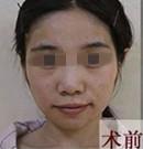 西安华仁面部脂肪填充怎么样(内附手术前后对比图)