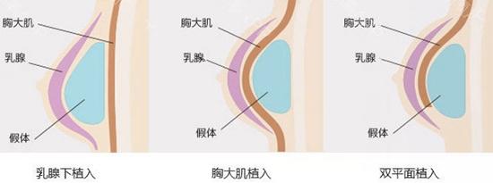 西安华仁假体隆胸植入位置