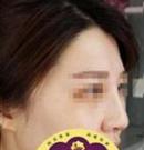 在沧州京美做了隆鼻之后整个人气质都变了