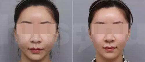 韩国hus-hu洪式超声刀溶脂案例