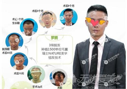 广州倍生植发案例