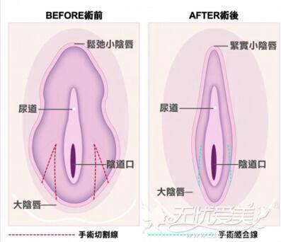焦作时代女子医院阴唇肥大缩小手术