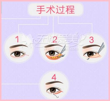 焦作无痕去眼袋手术方法