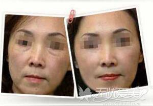 焦作金华去眼袋术前术后对比
