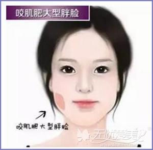 惠州凤凰整形瘦脸针适应症