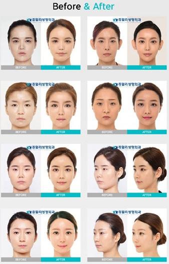 韩国珠儿丽对比案例图