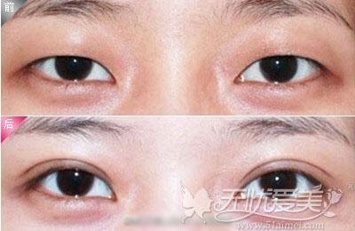 专家王志双眼皮手术真人案例
