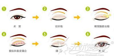 武汉伽美专利环绕双眼皮技术