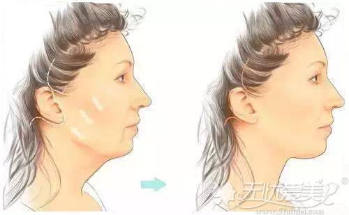 线雕提拉面部
