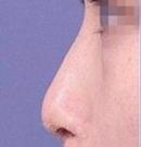 兰州亚韩玻尿酸隆鼻案例