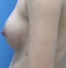 兰州亚韩假体隆胸案例