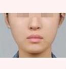 兰州亚韩改脸型案例