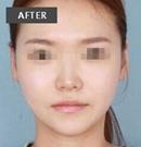 玉林华美韩式改脸型案例