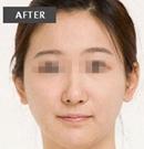 玉林华美注射瘦脸针案例