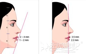 下巴段和后缩可以选择垫下巴
