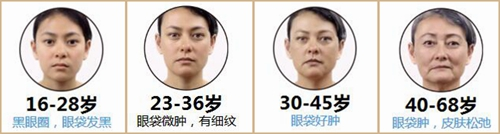 眼袋在不同年龄阶段的症状