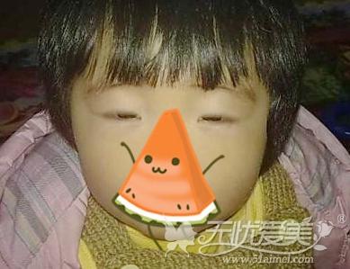 深圳双眼皮手术