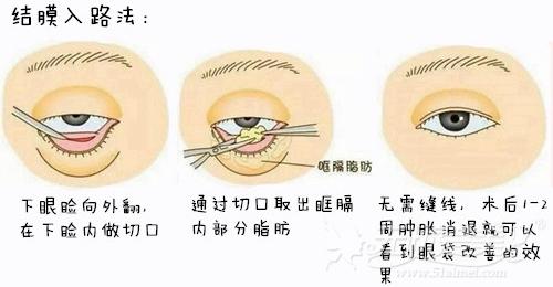 怀化天姿结膜入路法祛眼袋