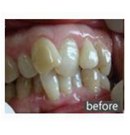 25岁幼师在盐城艾美莉做了全隐形牙齿正畸