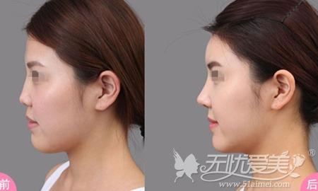 北京八大处肋软骨隆鼻案例