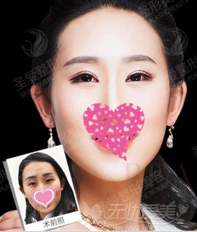 苏州圣爱韩式双眼皮手术前后对比