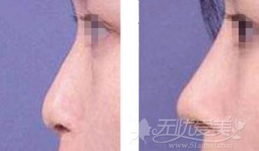 长沙爱思特达拉斯综合隆鼻案例