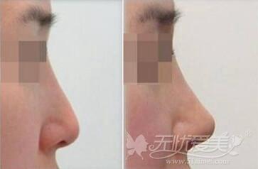 长沙爱思特玻尿酸注射隆鼻案例