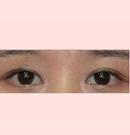泸州花都整形双眼皮手术案例