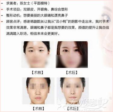 济南美莱整形专家韩旭双眼皮手术案例