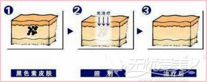 海南梦妮幻激光祛斑原理