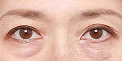 衰老型眼袋