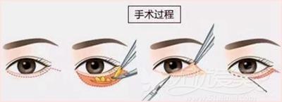 遵义韩美外切去眼袋手术步骤