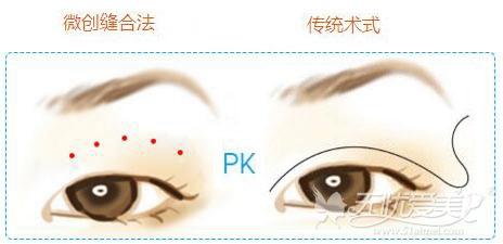 盐城艾美莉双眼皮手术微创缝合法