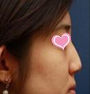 运城臻美整形假体隆鼻案例
