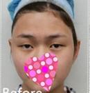 我在郑州欧兰做眼部综合整形的美丽日记