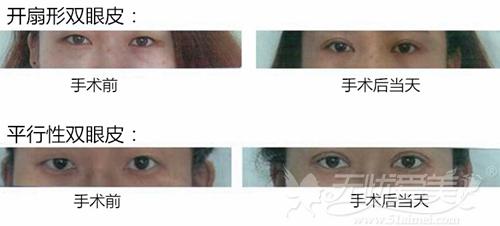 吴贵成双眼皮手术案例