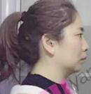 3个姑娘在长沙雅美做了下巴 现在美得不要不要哒