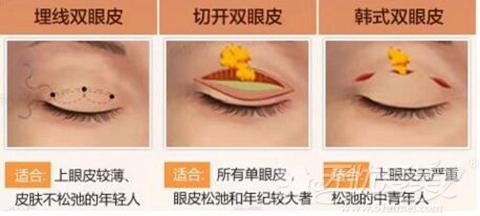 哈尔滨奥康整形双眼皮手术适应症