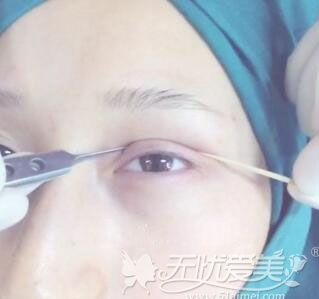 双眼皮术前设计
