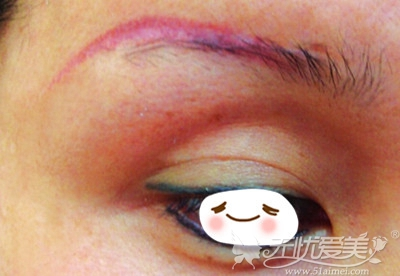 传统纹眉后期发红的眉毛